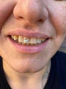 Tooth Gem - Diamond Dust