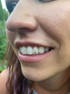 Triple Tooth Gem Application