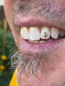 Anchor Tooth Gem
